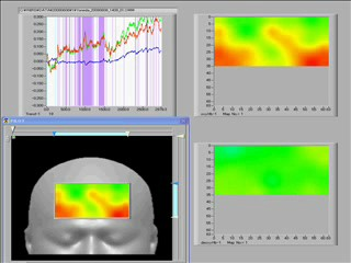fNIRSによるHAI中の脳機能画像の計測